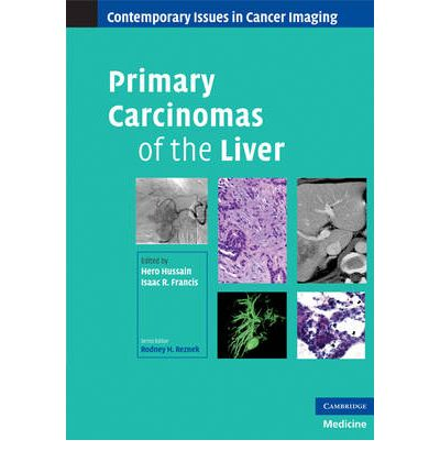 Primary Carcinomas of the Liver