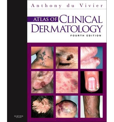 Atlas of Clinical Dermatology