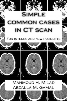 Simple Common Cases in CT Scan : For Interns and New Residents