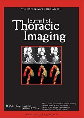 Thoracic Imaging Sj
