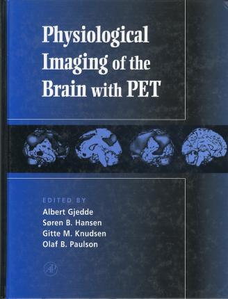Physiological Imaging of the Brain with PET