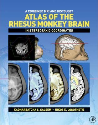 A Combined MRI and Histology Atlas of the Rhesus Monkey Brain in Stereotaxic Coordinates