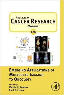 Emerging Applications of Molecular Imaging to Oncology: Volume 124