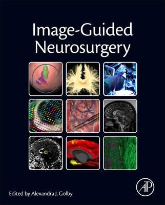 Image-Guided Neurosurgery