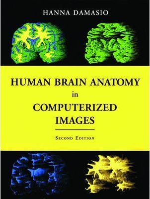 Human Brain Anatomy in Computerized Images