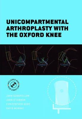 The Oxford Knee
