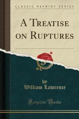 A Treatise on Ruptures (Classic Reprint)