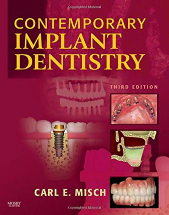 Contemporary Implant Dentistry - Carl E. Misch