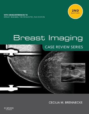 Breast Imaging: Case Review Series
