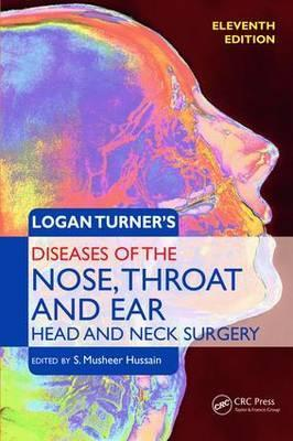 Ear Nose And Throat Disease