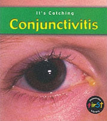 It's Catching: Conjunctivitis Paperback