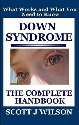 Down Syndrome: The Complete Handbook