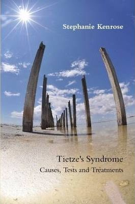 Tietze's Syndrome: Causes, Tests and Treatments