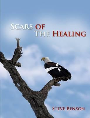 Scars of the Healing