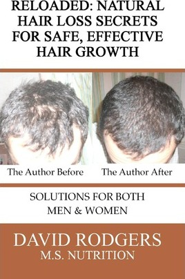 Reloaded  Natural Hair Loss Secrets for Safe, Effective Hair Growth