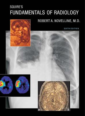 Imaging Of Diseases Of The Chest Pdf