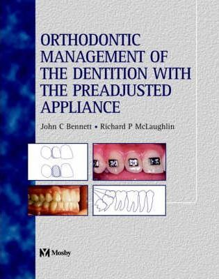 Orthodontic Management of the Dentition with the Pre-adjusted