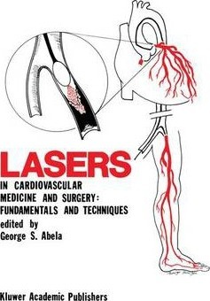 Lasers in Cardiovascular Medicine and Surgery: Fundamentals and Techniques