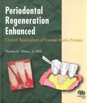 Periodontal Regeneration Enhanced