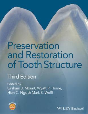 Preservation and Restoration of Tooth Structure