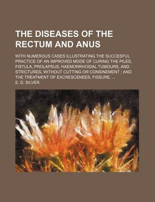 The Diseases of the Rectum and Anus; With Numerous Cases Illustrating the Succesful Practice of an Improved Mode of Curing the Piles, Fistula, Prolapsus, Haemorrhoidal Tumours, and Strictures, Without Cutting or Consinement and the