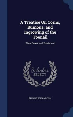 A Treatise on Corns, Bunions, and Ingrowing of the Toenail