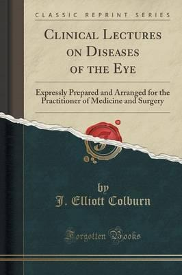Clinical Lectures on Diseases of the Eye : Expressly Prepared and Arranged for the Practitioner of Medicine and Surgery (Classic Reprint)