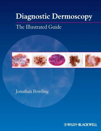Diagnostic Dermoscopy : The Illustrated Guide
