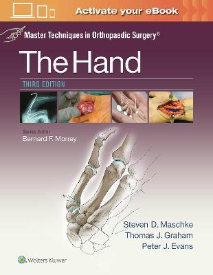 Master Techniques in Orthopaedic Surgery The Hand