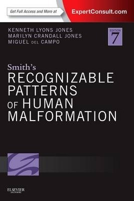 Smith's Recognizable Patterns of Human Malformation - Kenneth Jones