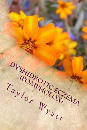 Dyshidrotic Eczema (Pompholox): Seeking Relief from the Itch and Blisters