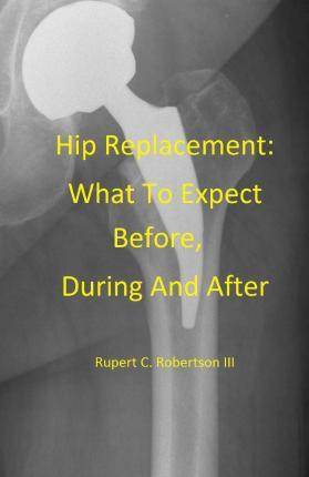 Hip Replacement: What to Expect Before, During and After