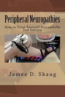Peripheral Neuropathies: How to Treat Yourself Successfully