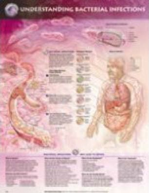 Understanding Bacterial Infections Anatomical Chart