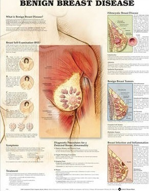 Benign Breast Disease Anatomical Chart