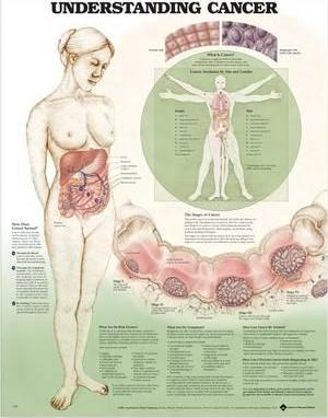 Understanding Cancer Anatomical Chart