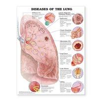 Diseases of the Lung Anatomical Chart