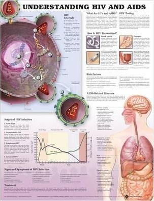 Understanding HIV and AIDS Anatomical Chart in Spanish (Entendiendo Que Son el VIH y el SIDA)