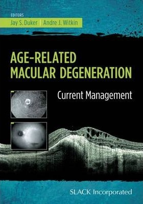 Age-Related Macular Degeneration  Current Management