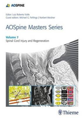Aosspine Masters Series