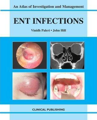 ENT Infections