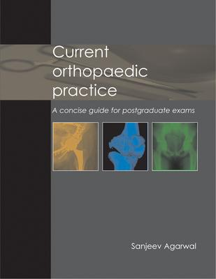 Current Orthopaedic Practice : A Concise Guide for Postgraduate Exams