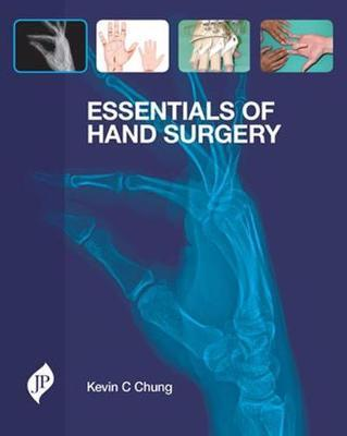 Essentials of Hand Surgery Cover Image
