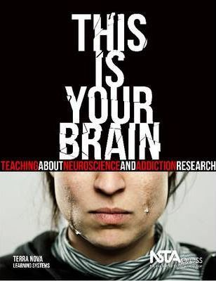 This Is Your Brain  Teaching about Neuroscience and Addiction Research