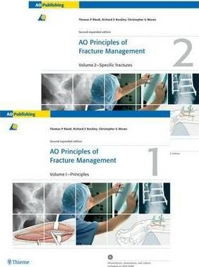 AO Principles of Fracture Management: Principles Volume 1
