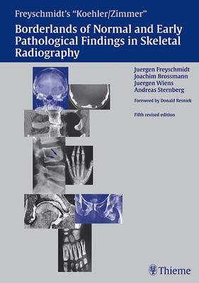 Koehler/Zimmer's Borderlands of Normal and Early Pathological Findings in Skeletal Radiography