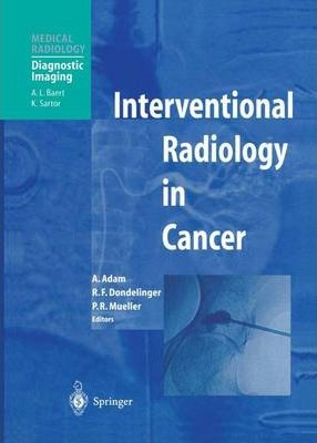 Why Interventional Radiology Is Used