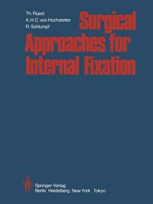 Surgical Approaches for Internal Fixation