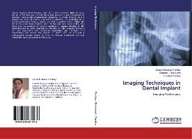 Imaging Techniques in Dental Implant