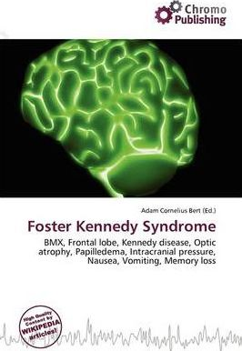 Foster Kennedy Syndrome